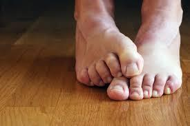 These best foot soaks for cracked heels can help you avoid embarrassing feet.