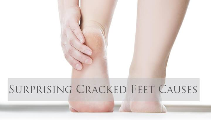 Cracked Feet Causes