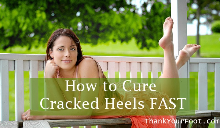 How to Cure Cracked Heels FAST