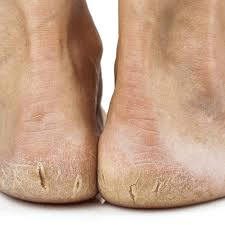 Common causes of painful cracked heels.