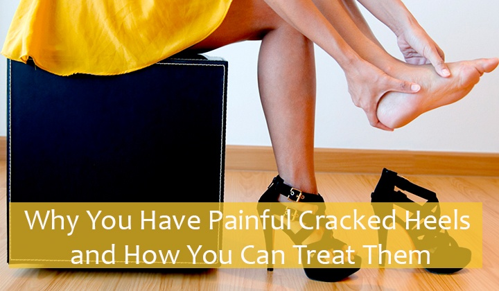 Painful Cracked Heels Treatment