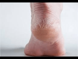 Painful cracked heels can be a result of letting feet become too dry.