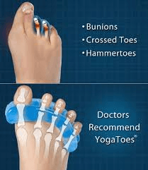 The benefits of toe spacers: They can be used to treat painful foot conditions, naturally.