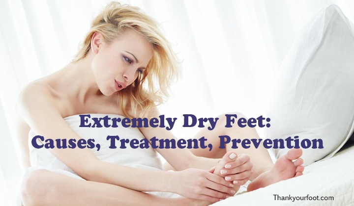 Extremely Dry Feet