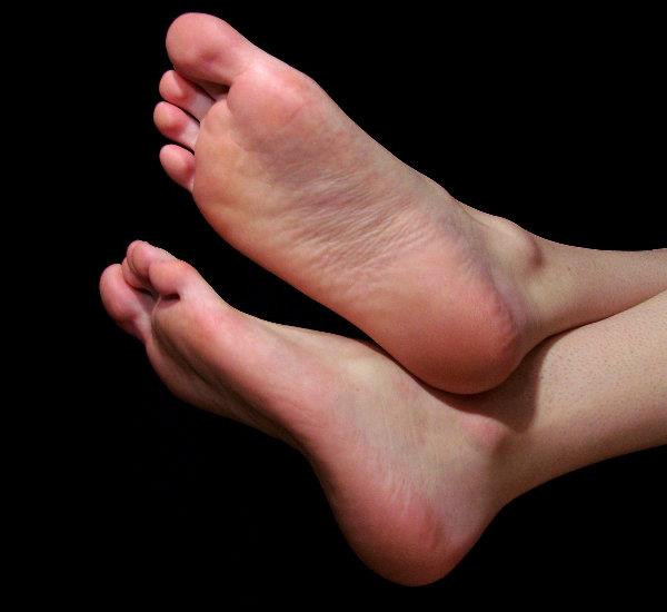 How to cure cracked heels with one of the fastest home remedies